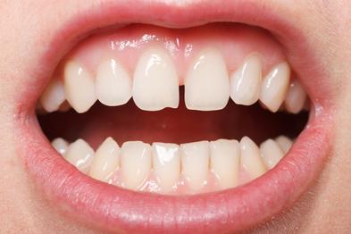 Ein hocheinstrahlendes Lippenbändchen kann eine Lücke zwischen den beiden oberen Frontzähnen bedingen. © Ocskay Bence / Fotolia.com