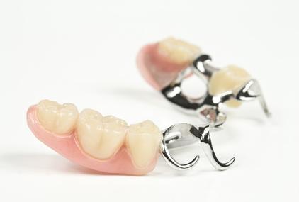 Eine Klammerprothese ist die einfachste Form, Zähne zu ersetzen. © Michael Tieck / Fotolia.com