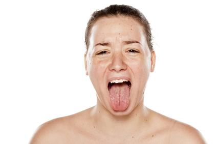 Mundtrockenheit ist häufig assoziiert mit einem starken Zungenbrennen. © vladimirfloyd / Fotolia.com