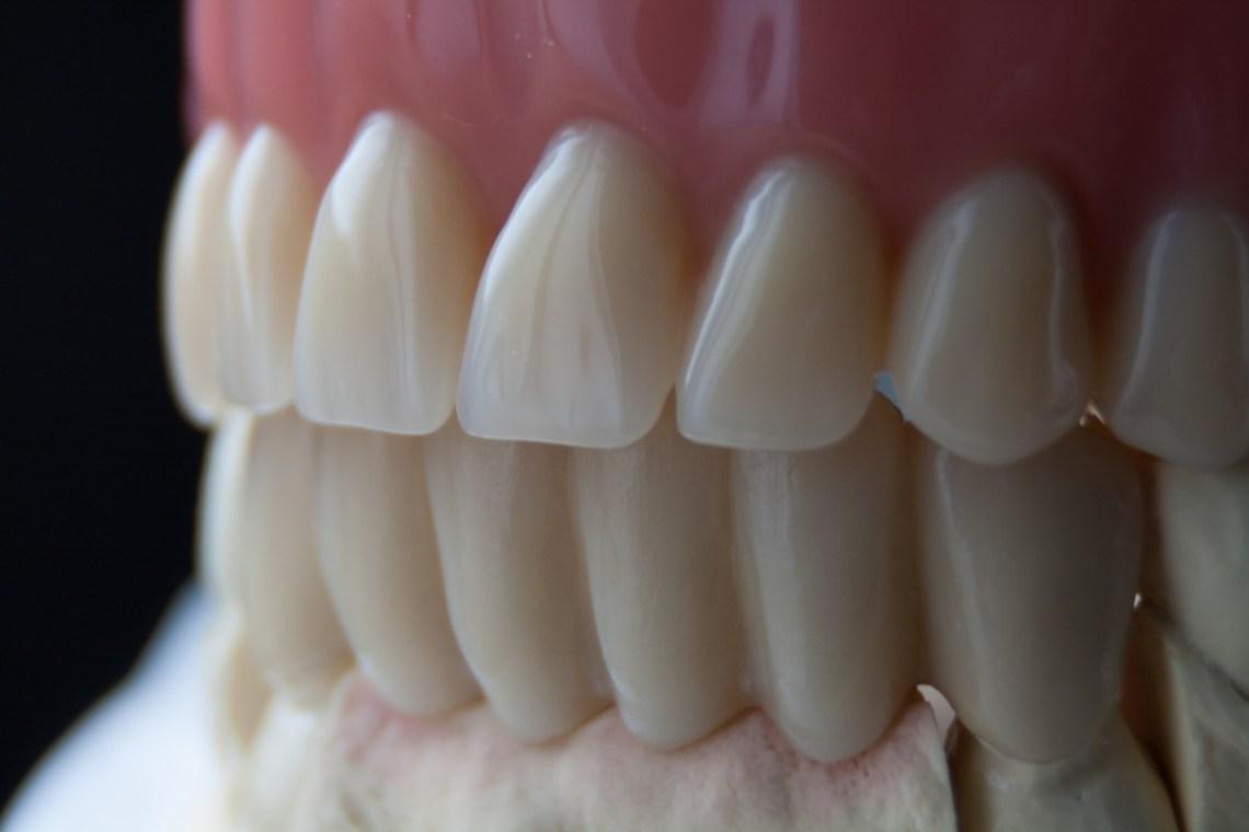 Mit einer Totalprothese können Zahnlose wieder Zähne zeigen.