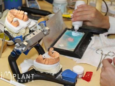 implantcenter-fogaszat-fogtechnika-1