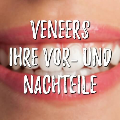 Veneers ~ Vor – und Nachteile ~ Arten und Kosten