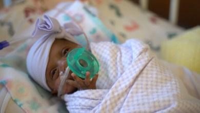 Photo of Né à 245 grammes, le plus petit bébé du monde a survécu