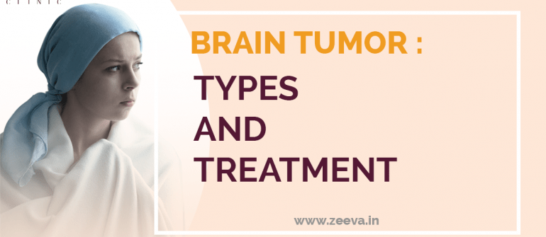 Brain Tumor Types and Treatment