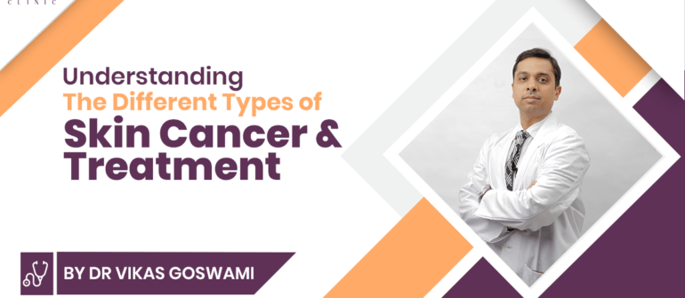 Understanding the Different Types of Skin Cancer & Treatment
