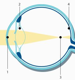 nearsightedness myopia laser eye surgery medical technology zeiss international medical technology zeiss international [ 1280 x 853 Pixel ]
