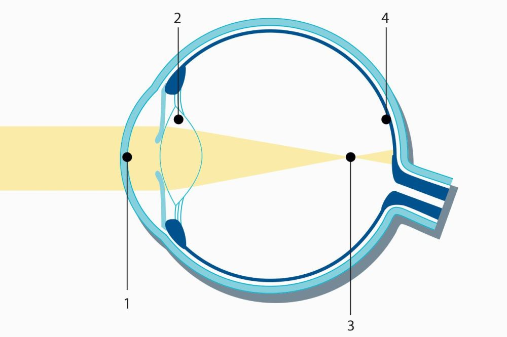 medium resolution of nearsightedness myopia laser eye surgery medical technology zeiss international medical technology zeiss international