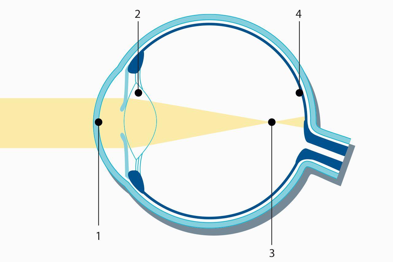 hight resolution of nearsightedness myopia laser eye surgery medical technology zeiss international medical technology zeiss international