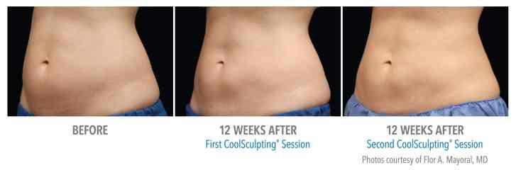 CoolSculpting in Edina & Plymouth MN | Zelskin com