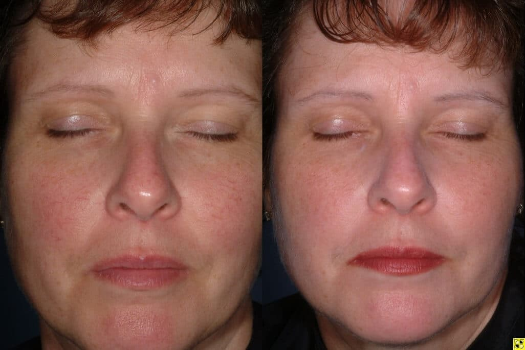 Treatment For Facial Redness