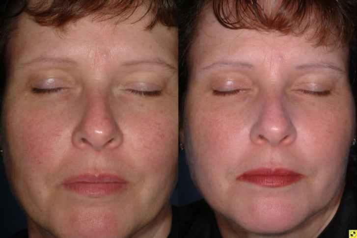... Facial Redness Treatment minneapolis ...