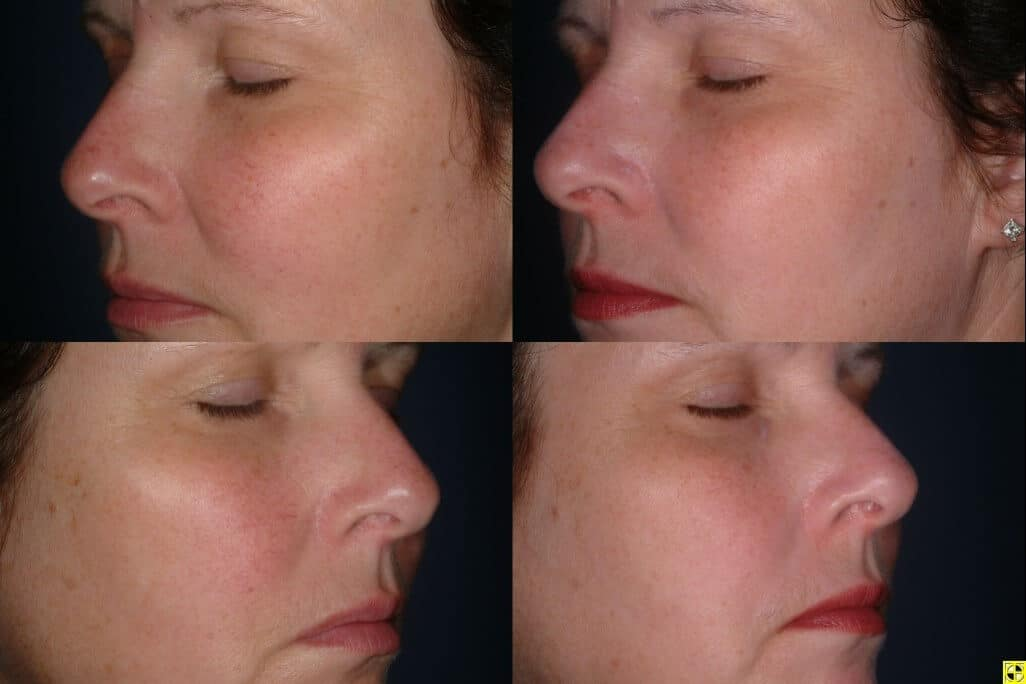 laser treatment for red nose