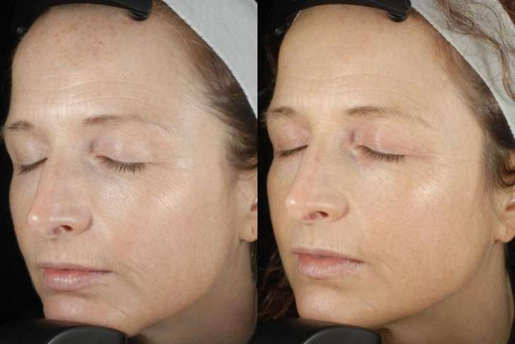 Fraxel Results After 1 Treatment