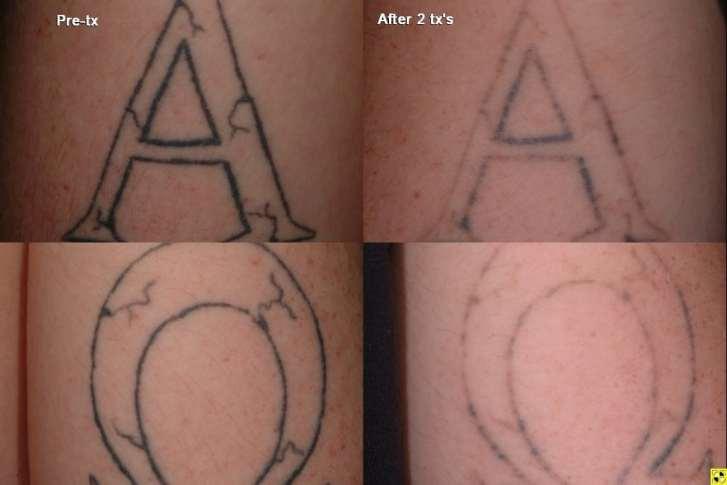 Laser Tattoo Removal In Mn Zelskincom