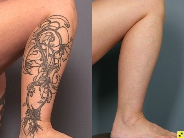 Tattoo Removal Minneapolis Zel Skin