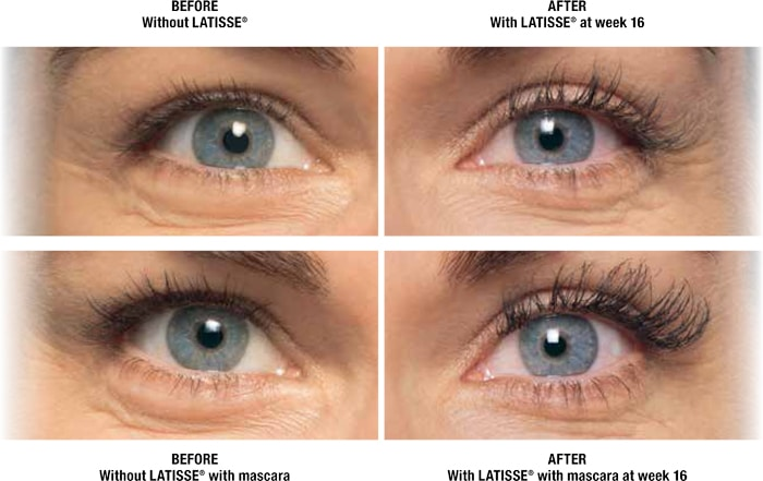 Latisse Eyelash Treatment In Edina Plymouth Minneapolis Mn