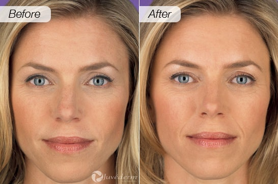 Dermal Fillers & Lip Injections in Minneapolis, Plymouth