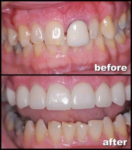 Porcelain Dental Crowns | Zen Dental Holistic Edinburg Tx
