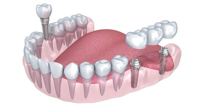 Zen Dental human-lower-teeth-crown-and-dental-implant-3d-model-animated-max-obj-3ds-fbx-mtl