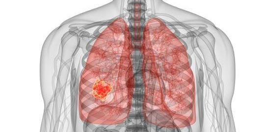 Rischio Radon: una nuova minaccia per la salute dell'uomo?