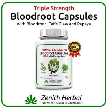 Bloodroot capsules
