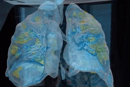 Ecco come il coronavirus attacca i nostri polmoni in un video 3D