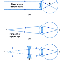 Long And Short Sighted Diagram 36 Volt Club Car Golf Cart Wiring Make A Ray To Show How The Eye Defect Myopia Is Corrected By Using Suitable Lens. From ...