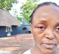 Photo of MDC-A MP dies 'from stroke' after being recalled by MDC-T