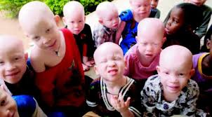 'Embrace Albinism'