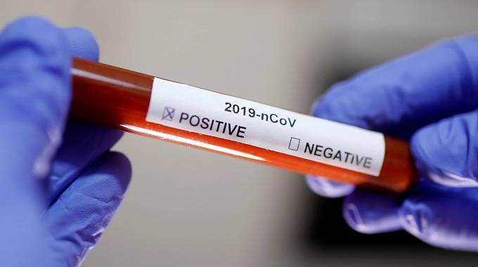 15 people test positive for Covid-19