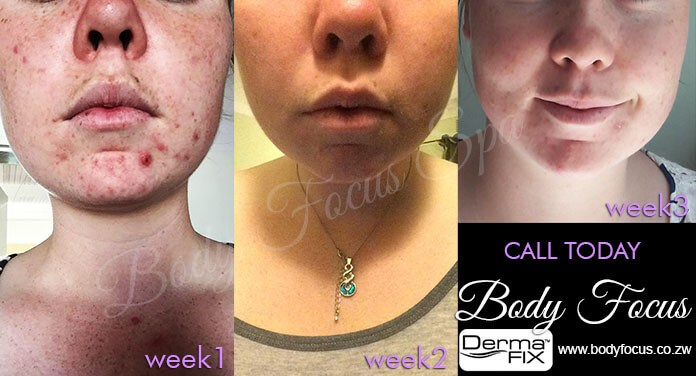 Your Acne Solution – Body Focus