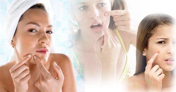 Cinamonas-ir-medus_spuogai-dermatitas-egzema Cinamonas ir medus - sveikata ir harmonija dešimčiai metų į priekį!