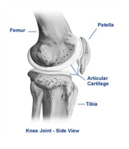 cartilage damage