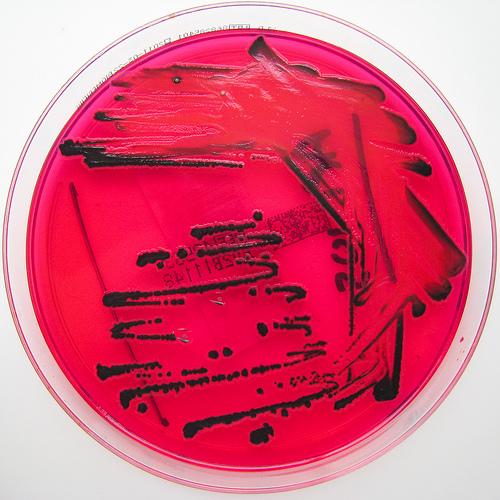typhoid test