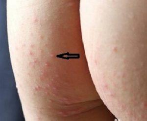 兒童手足口病癥狀圖片與手足口病初期癥狀表現-自然花卉