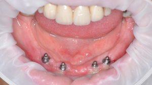 Tam dişsiz ağızda dört implant üzeri hareketli protez