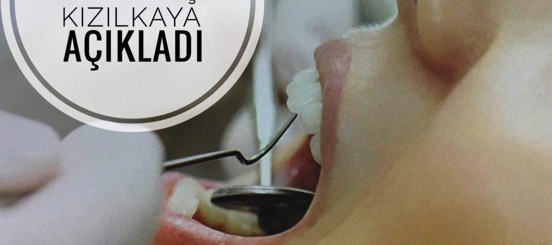 Estetik ön diş kaplama