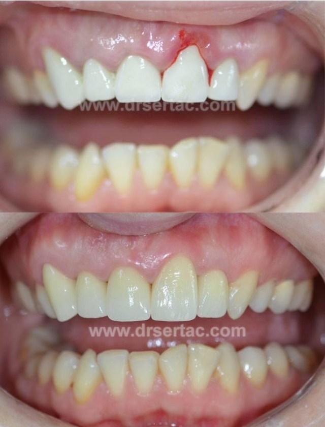 İyi yapılmayan zirkonyum diş kaplama örneği örüyordunuz diyen diş hekimi Sertaç Kızılkaya bu vakayı nasıl düzelttiğini açıkladı.