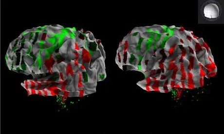 3D rendering from the Allen Human Brain Atlas showing the expression a single gene across the cortex of two human brains, revealing areas with higher (red) and lower (green) expression. Photograph: Allen Institute for Brain Science