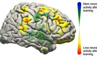 This image shows the changes that took place in the brain for all patients participating in the study using a brain-computer interface. Changes in activity were distributed widely throughout the brain. (c) Jeremiah Wander, UW
