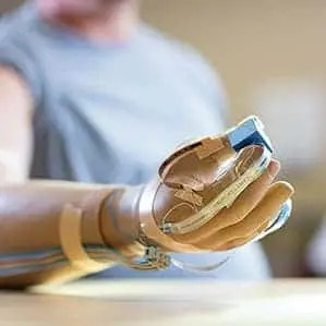 The artificial hand recipient can feel touch at 20 hot spots. (c) Northwestern University
