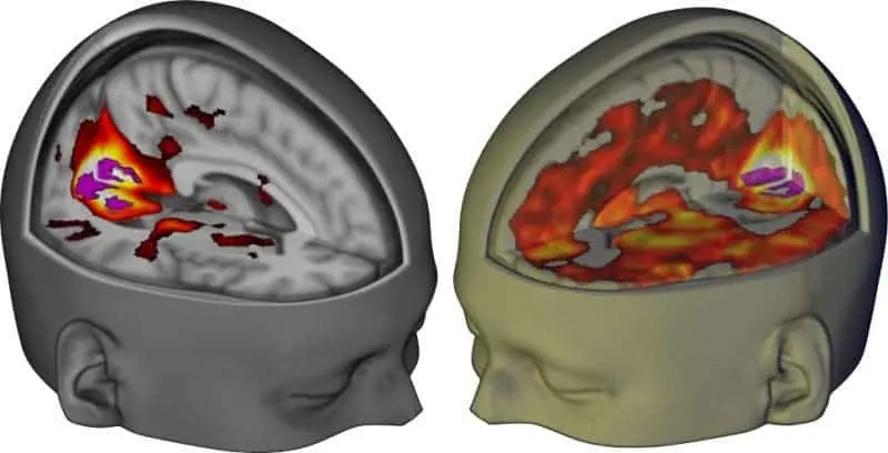 Left: brain scan of adult brain under a placebo showing primary visual cortex connections. Right: the same connection under the influence of LSD where multiple brain areas are involved. Credit: Imperial College London