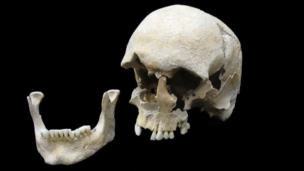Skull of a plague victim whose DNA was extracted by the Harvard researchers. Credit: STATE COLLECTION OF ANTHROPOLOGY AND PALAEOANATOMY MUNICH