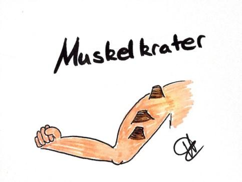 Musklkrater