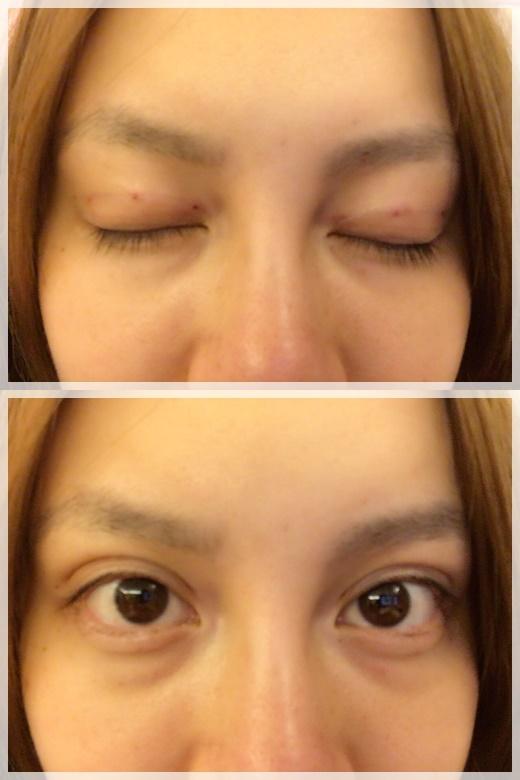 『臺中整型診所』最新型的韓式雙眼皮,臺中割訂書針雙眼皮一點都不腫,還好的很快~好完美唷! @ YuChang's dream ...