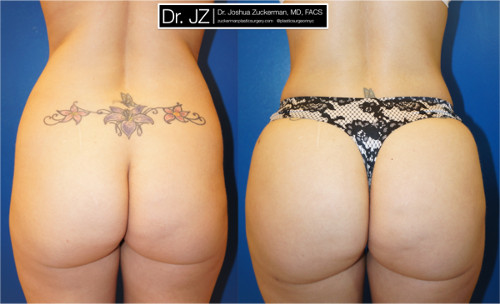 Posterior view of Buttock Augmentation (Brazilian Butt Lift) performed by Dr. Zuckerman. Images were taken before surgery and one week after surgery.