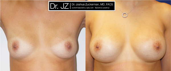 Frontal view of a breast augmentation surgery outcome from Dr. Zuckerman before surgery and one year after surgery.