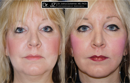 Frontal view of one of Dr. Zuckerman's face lift surgery patients. Images were taken before surgery and one year after surgery.