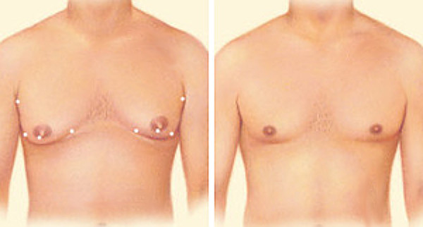 An illustrative before and after image for male breast reduction surgery (gynecomastia surgery). Source: ASPS.