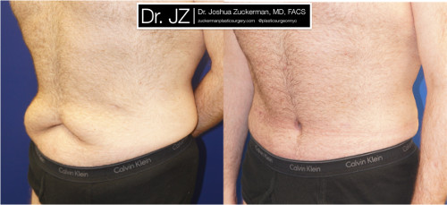 Left oblique view of a post weight loss surgery patient. Dr. Zuckerman performed a tummy tuck after this patient had previously lost 100lbs. Images taken before surgery and three months post-op.